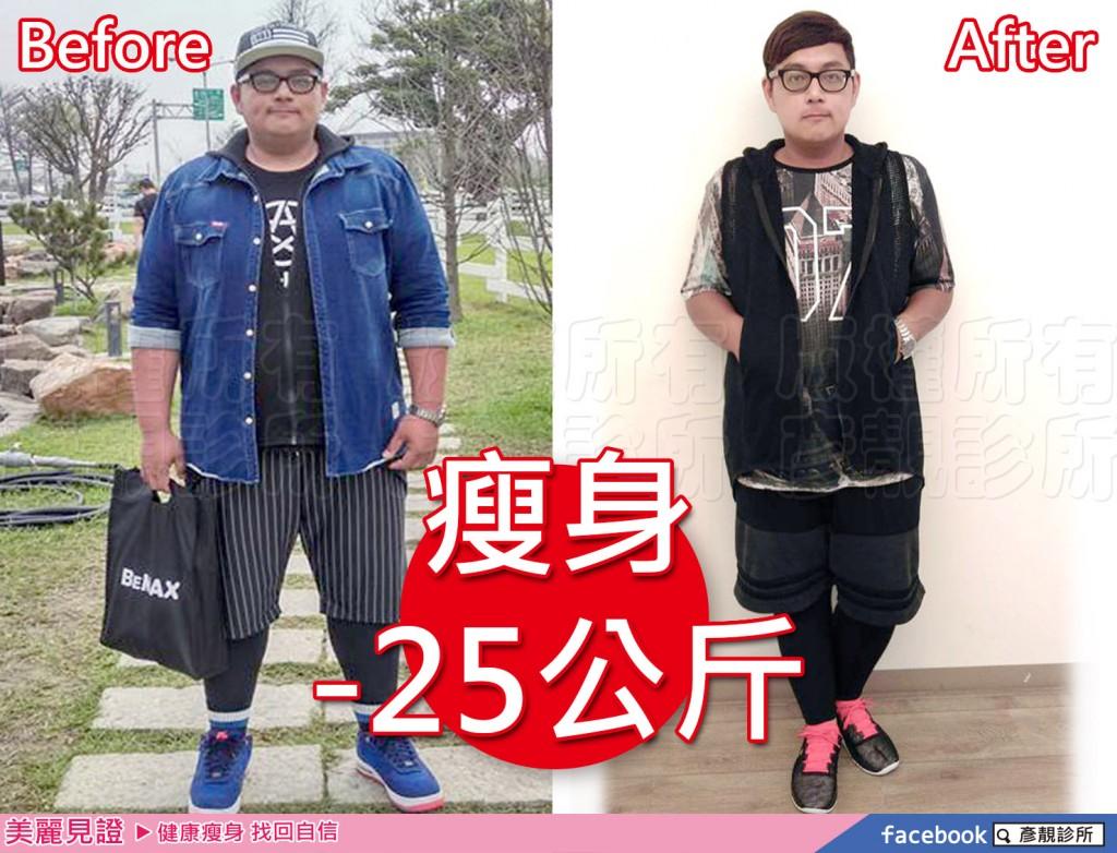 桃園-台北-減肥-減重-瘦身-成功-不復胖-減脂-消脂-甩油-小腹婆-肥胖-易胖體質-健康-瘦身餐-減肥食譜-成功減重-彥靚診所-案例-推薦-新竹-169050013