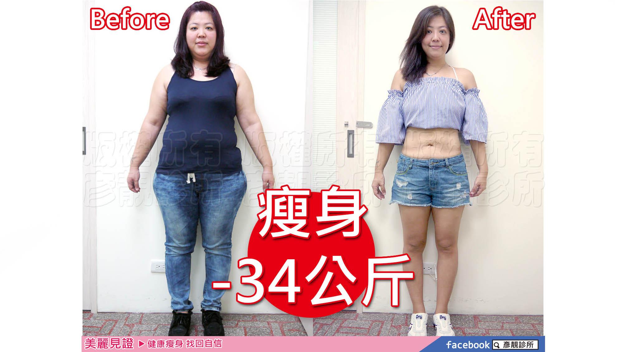 【減重瘦身】酪梨型肥胖身材成功瘦身-34公斤,大象腿都變瘦了